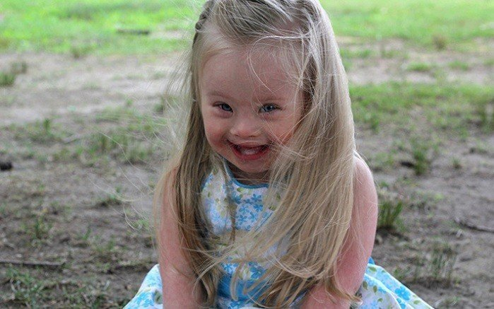 90% of Unborn Babies Diagnosed With Down Syndrome are Killed in Abortions. This Has to End