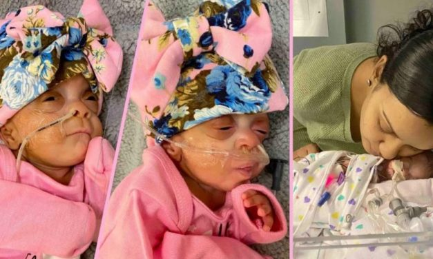 Premature Baby Girls Born at 22 Weeks are the 2nd Youngest Ever to Survive. Look at Them Now