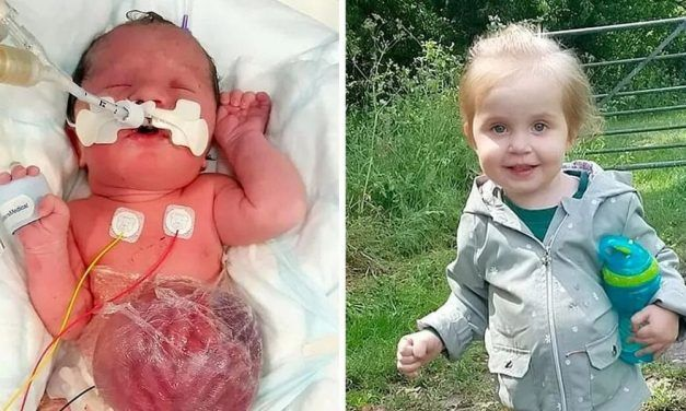 Girl Born With Her Vital Organs Outside Her Body Doing Great After Parents Rejected Abortion
